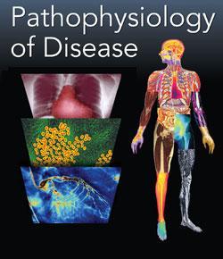 Pathophysiology Practice Exam 1