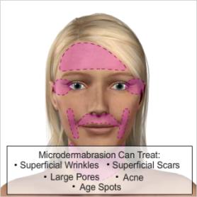 Micro - Dermabrasion Treatments