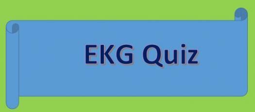 EKG Rhythm Quiz Questions