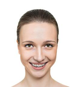 How To Tell If You Need Braces? Braces Trivia Quiz