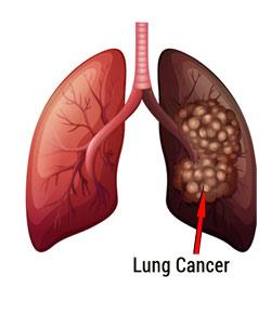 Lung Cancer Causes And Symptoms Questions