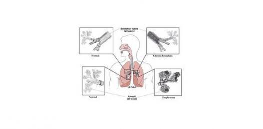 COPD Quiz (Exam Mode) By Rnpedia.Com
