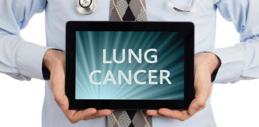 Test Your Knowledge About Lung Cancer (7 Qs)