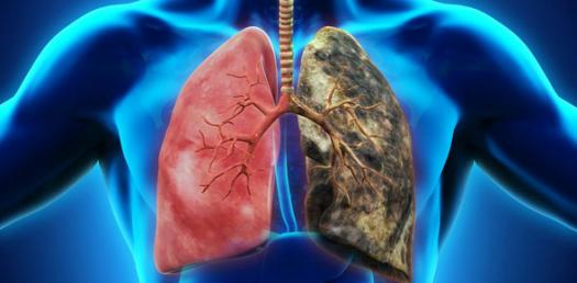 Interstitial And Fibrotic Lung Disease