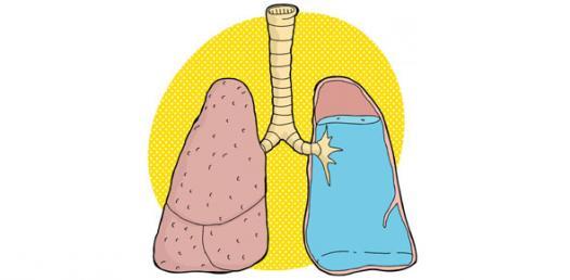 Pneumonia By Rnpedia