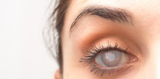 Cataract Quiz