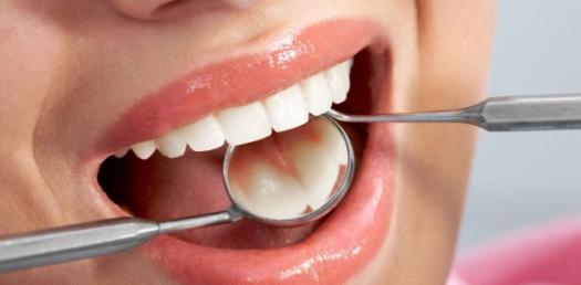 Dental Fillings: Ultimate Quiz On Amalgam And Composite Restorations!