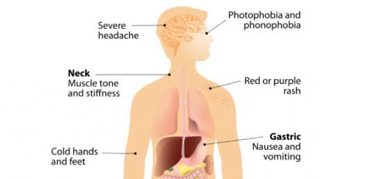 Meningococcal Meningitis And Septicaemia