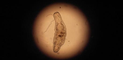 Chapter 9  Parasitology /Chapter 10 Parasitic Diseases