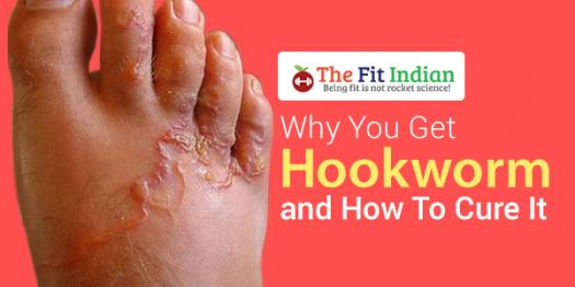 How Well Do You Know Hookworm Infection?