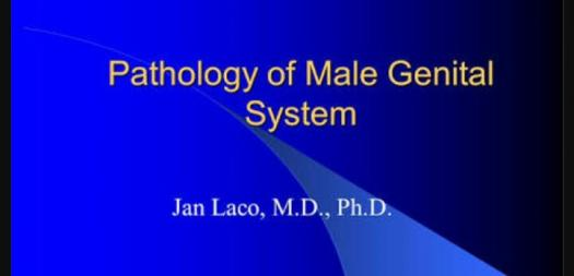 What do you know about the male pathology?
