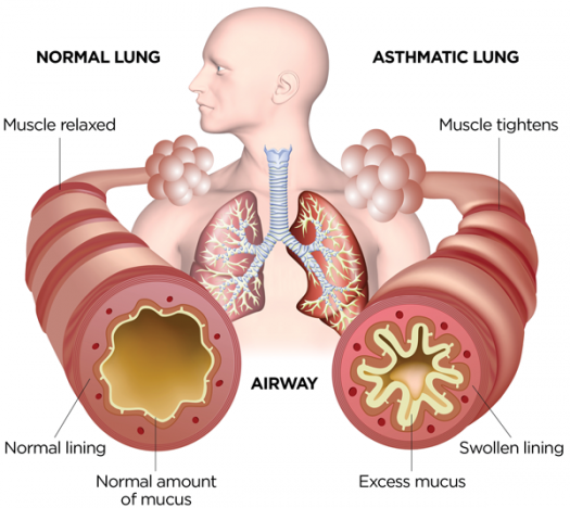 Test Quiz: Pharmacotherapy Of Asthma