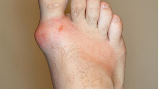 Test Quiz: Pharmacotherapy Of Gout