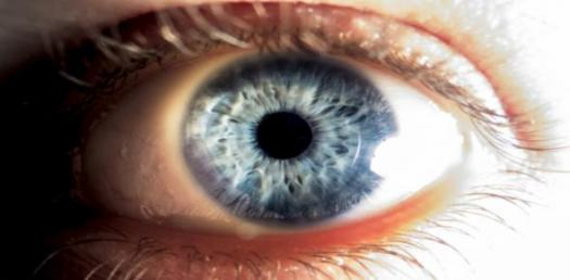 Quiz: Everything You Should Know About The Myopia!