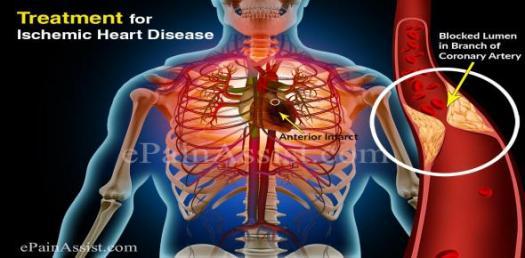 Are You Aware Of Congenital Heart Disease?