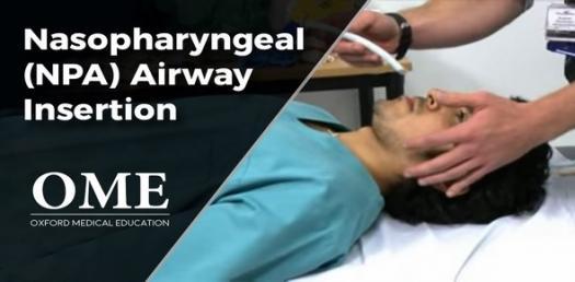 nasopharyngeal airway Quizzes & Trivia