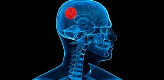 What Do You Know About Brain Tumor?