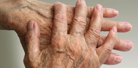 Pharm Arthritis And Gout Part 2