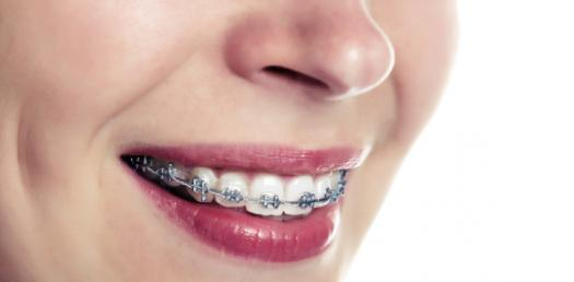 Which Color Of Braces Should You Get?