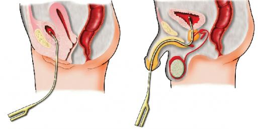 Anatomy And Physiology Questions - The Urinary System