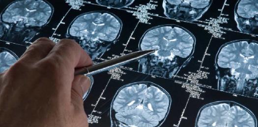 Sacral Diagnosis