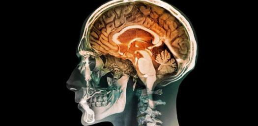 The Brain Quiz