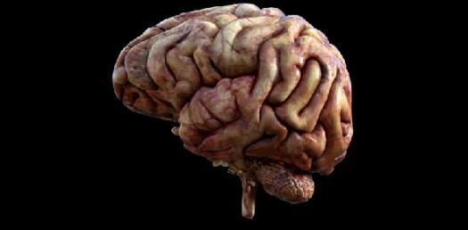 Brainteaser - Level 1