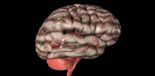 The Brain Dominance Quiz