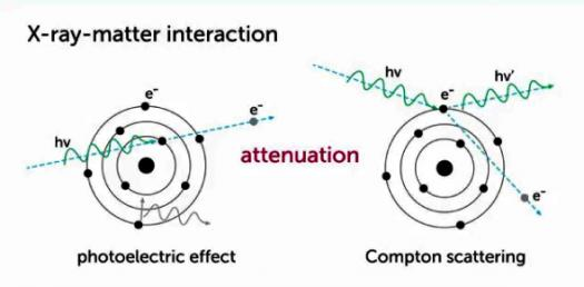 X-ray Production And Interaction With Matter! Trivia Quiz