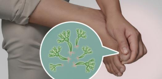 Types Of Fungal Infections! Trivia Questions Quiz