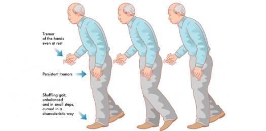 Parkinsonism: Symptoms And Diagnosis! Trivia Knowledge Quiz
