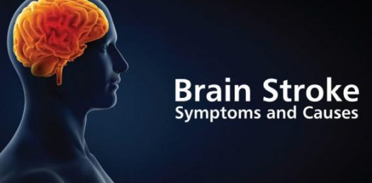 Stroke: Symptoms And Causes! Trivia Questions Quiz