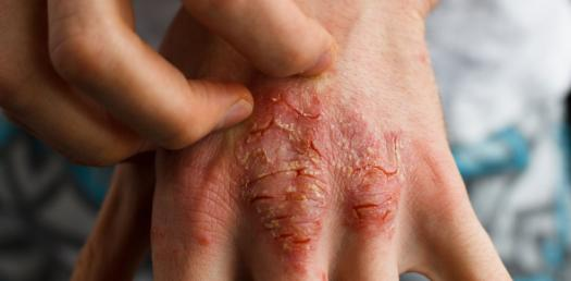 Can You Identify These Skin Diseases? Trivia Quiz