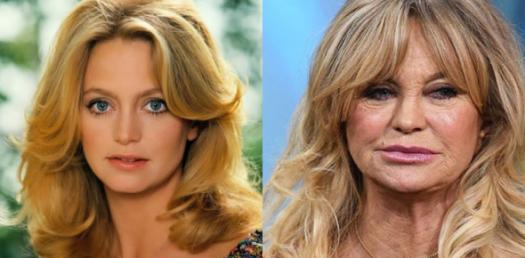 Quiz: Which Badly Aged Celebrity Are You?