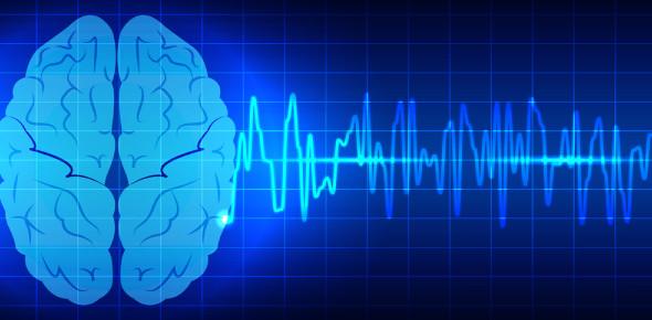 Neurophysiology Practice Quiz