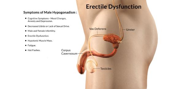 Erectile Dysfunction Test! Quiz