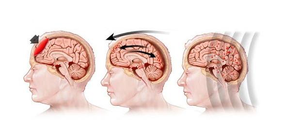 Traumatic Brain Injury Quiz: Trivia Exam!