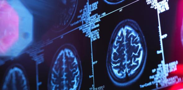 Neuroscience And Behavior / Practice Multiple Choice