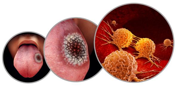 Oral Cancer Quiz