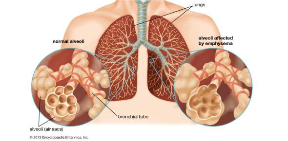 Chronic Obstructive Pulmonary Disease Multiple Choice