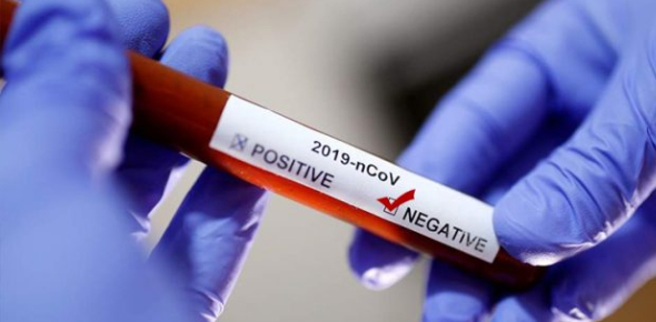 Coronavirus Test: Are You Positive Or Negative? Quiz
