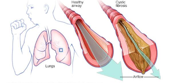 Cystic Fibrosis By Rnpedia.Com