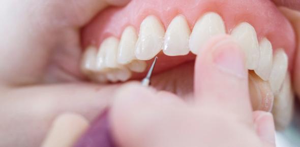 Prosthodontics Quiz: Trivia Exam!