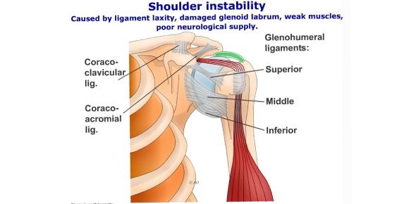 Shoulder Instability Questions Quiz! Trivia