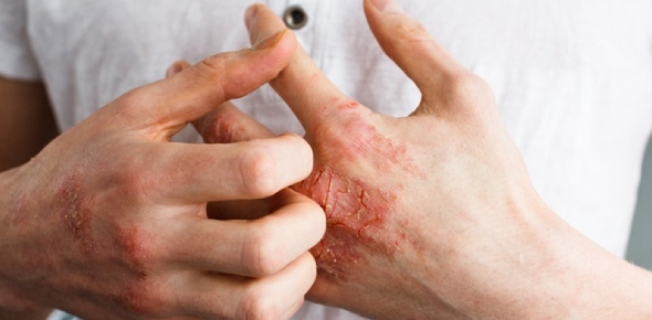 Quiz: Chapter 8 Skin Disorders And Diseases