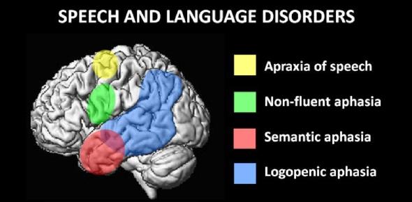 Speech And Language Disorders Quiz! Trivia