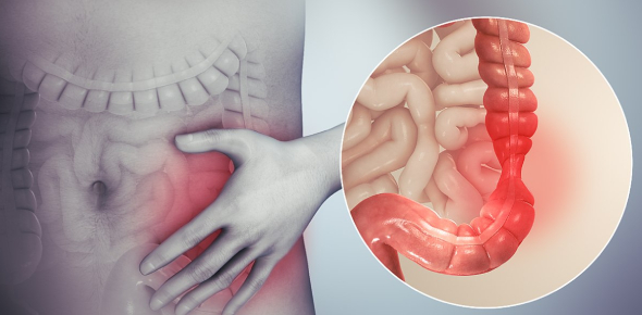 Ibs Quiz - Do You Think You Have Ibs?