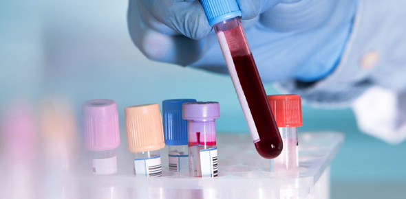 Interesting Facts About Blood! Trivia Quiz