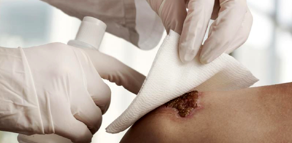 Skin And Wound care Trivia Quiz!