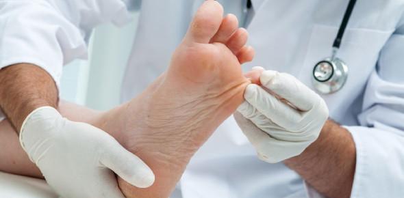 Diabetes Foot care Tips Quiz: Trivia!